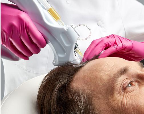 Regenera Activa Otolog Hücresel Saç Tedavisi